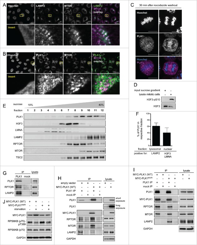 PLK1 resides with MTORC1 at lysosomes, and overexpression of active PLK1 decreases lysosomal association of the PLK1-MTORC1 complex. (A) Immunofluorescence analysis of HeLa cells that were cultured in full medium and stained with LAMP2 and MTOR antibodies. White regions in merged image (right) of LAMP2 (green) and MTOR (magenta) indicate colocalization. Nuclei were stained with Hoechst 33342. Scale bar 20 µm. Representative images are shown for n = 3 independent experiments. (B) Immunofluorescence analysis of HeLa cells that were cultured in full medium and stained with PLK1 and MTOR antibodies. White regions in merged image (right) of PLK1 (green) and MTOR (magenta) indicate colocalization. Nuclei were stained with Hoechst 33342. Scale bar 20 µm. Representative images are shown for n = 3 independent experiments. (C) Immunofluorescence analysis of HeLa cells that were synchronized in prometaphase with nocodazole for 16 h and released for 30 min in full medium. Cells were stained with PLK1 antibody. Nuclei were stained with Hoechst 33342. Scale bar: 10 µm. Representative images of cells in metaphase (left) and anaphase (right) are shown for n = 3 independent experiments. (D) Analysis of input sample taken before fractionation in sucrose gradient (E). The mitotic cell lysate was collected from HeLa sh PLK1  knockdown cultures without mitotic shake-off. Samples were analyzed by immunoblotting. Data shown are representative of n = 2 independent experiments. (E) HeLa cells were starved for 1 h for amino acids and growth factors and stimulated with amino acids and insulin for 35 min. Samples were separated in a 10 to 40% sucrose gradient and analyzed by immunoblotting. Data shown are representative of n = 3 independent experiments. (F) Quantification of data shown in (E) for n = 3 independent experiments. The percentage of PLK1 in either the lysosomal or the nuclear fraction is displayed. Data are represented as mean ± SEM. (G) HeLa cells were cultured in full medium. Immunoprecipitation (IP) was performed with PLK1 and control (mock) antibodies. Samples were analyzed by immunoblotting. Data shown are representative of n = 3 independent experiments. (H) HeLa cells overexpressing wild type MYC-PLK1 (WT) or empty vector were cultured in full medium. Immunoprecipitation (IP) was performed with PLK1 and control (mock) antibodies. Samples were analyzed by immunoblotting. Data shown are representative of n = 3 independent experiments. (I) HeLa cells overexpressing MYC-PLK1 (WT) or kinase-defective, dominant negative MYC-PLK1 K82R  were cultured in full medium. Immunoprecipitation (IP) was performed with PLK1 and control (mock) antibodies. Samples were analyzed by immunoblotting. Data shown are representative of n = 3 independent experiments. (J) HeLa cells overexpressing MYC-PLK1 (WT) or kinase-defective, dominant negative MYC-PLK1 K82R  were starved for 1 h for amino acids and growth factors, and stimulated with amino acids and insulin for 35 min. Cells were then starved for amino acids for 10 min as indicated, and samples were analyzed by immunoblotting. Data shown are representative of n = 3 independent experiments.