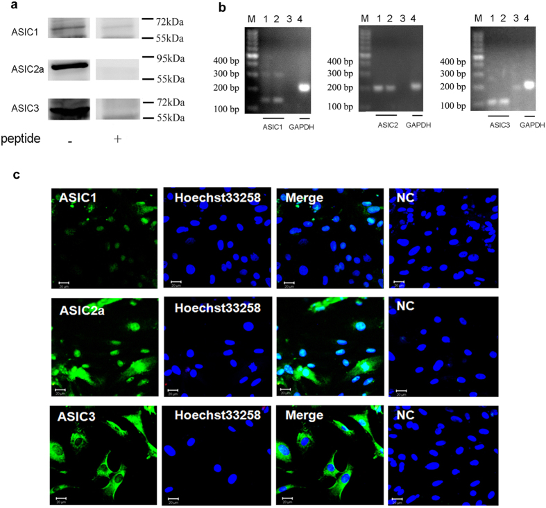 Expressions of ASIC subunits in rat cardiomyocytes. ( a ) Expressions of ASIC1, 2a and 3 proteins in rat cultured cardiomyocytes. Individual ASIC subunits peptides were added as negative controls. The blots were cropped from Supplementary Fig. S1a . The representative full-length blot for ASIC2a was shown in Supplementary Fig. S2 . ( b ) Expressions of ASIC1, 2 and 3 transcripts in cultured rat ventricular myocytes. GAPDH transcript was used as control. M: marker; 1, 4: cardiomyocytes; 2: cortex; 3: negative control. ( c ) Double - labeling fluorescence of ASICs ( green ) and nucleus ( blue , marker: Hoechst 33258) in cultured ratcardiomyocytes. NC: pretreatment with immunogenic peptide as negative control. Scale bars: 20 μm. All data were represented from at least three similar independent experiments.