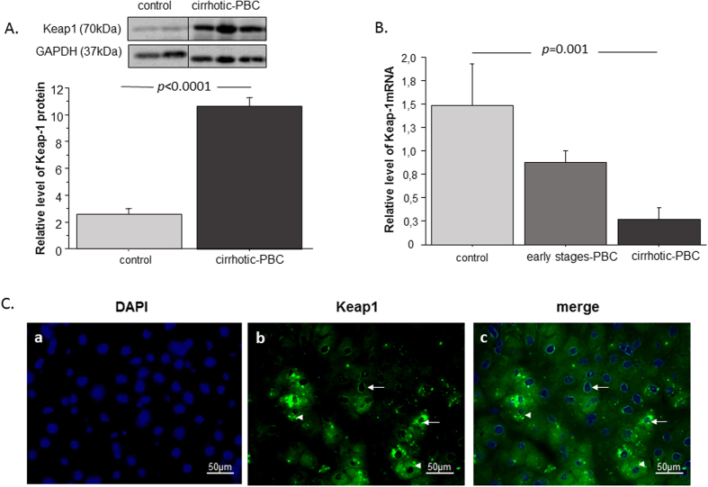 The hepatic expression of Keap1 in liver tissues of patients with PBC and controls. ( A ) Keap1 protein levels were determined with densitometry analyses, after normalization to GAPDH as a loading control. ( B ) Keap1 mRNA levels were estimated in patients with cirrhotic PBC, patients with early stage PBC, and controls. Results were normalized to 18sRNA. Bars indicate the mean ± SEM. ( C ) Representative immunofluorescence micrographs show liver sections from patients with PBC. (a) Nuclei are stained with DAPI (blue). (b) Immunofluorescence staining of Keap1 (green) shows its abundance in hepatocytes. (c) Arrows indicate the perinuclear and nuclear localizations of Keap1whereas arrowheads indicate cytoplasmic localization of Keap1.