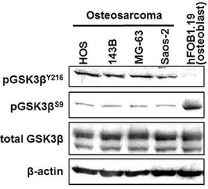 Expression and phosphorylation of GSK3β in osteosarcoma cells and in untransformed osteoblasts Fractions of phosphorylated GSK-3β (pGSK-3β Y216 : active form; pGSK-3β S9 : inactive form) and total GSK-3β were detected in protein extracts from osteosarcoma and hFOB1.19 cells by Western immunoblotting analysis. The amount of protein extract from each sample was compared to the expression of β-actin.