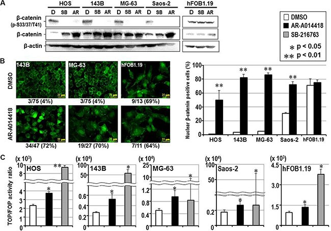 Effect of GSK-3β inhibition on the expression, phosphorylation, subcellular localization and co-transcriptional activity of β-catenin in osteosarcoma and osteoblast cells ( A ) Western-blotting analysis was used to compare the expression and phosphorylation of β-catenin between cells treated with DMSO and either GSK-3β inhibitor. Expression of β-actin was monitored as a loading control. ( B ) The left panels show representative immunofluorescence microscopic findings of expression and subcellular localization of β-catenin in osteosarcoma (143B, MG-63) and osteoblast (hFOB1.19) cells. The scale bar in each panel indicates 25 μm. The number shown below each panel indicates the percentage of nuclear β-catenin-positive cells among the total number of cells. The bar graphs on the right shows the effects of DMSO and AR-A014418 on the incidence of nuclear localization of β-catenin in osteosarcoma and osteoblast cells. In each assay, the mean percentage of nuclear β-catenin-positive cells in 3 microscopic fields was evaluated with standard deviation. ( C ) Relative co-transcriptional activity of β-catenin was measured by the TOP/FOP flash assay and compared between cells treated with DMSO, AR-A014418 and SB-216763, respectively. (B, C) Asterisks denote a statistically-significant difference between the data after administration of vehicle and GSK-3β inhibitors.
