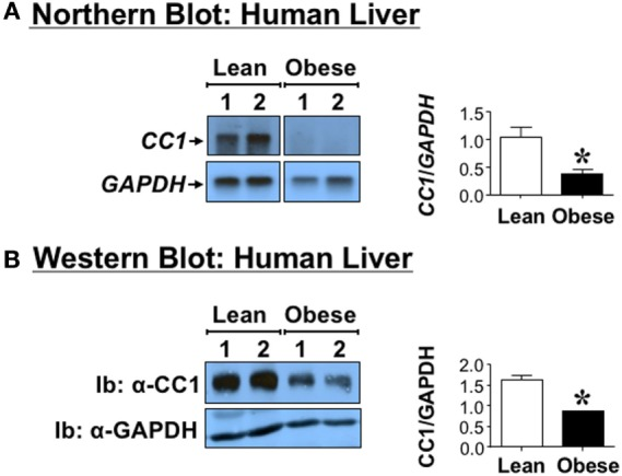Carcinoembryonic antigen-related cell adhesion molecule 1 <t>(CEACAM1)</t> level in human livers . Livers derived from anonymous obese (body mass index > 30 kg/m 2 ) 45- to 50-year-old male subjects and age-, sex-, and race-matched lean subjects. (A) CEACAM1 mRNA ( CC1 ) was analyzed by Northern blot analysis of total liver mRNA and sequentially probed with <t>cDNAs</t> for CEACAM1 ( CC1 ) followed by GAPDH for normalization. (B) Liver lysates from obese and lean subjects were analyzed by 4–12% SDS-PAGE followed by immunoblotting (Ib) with polyclonal antibody against CEACAM1 (CC1) and normalization against GAPDH. For simplicity, only two samples of each group are shown as representatives of three independent experiments. The graph on the right represents densitometry analysis of CEACAM1 bands relative to those of GAPDH in all tissues. Values shown as mean ± SEM with * P
