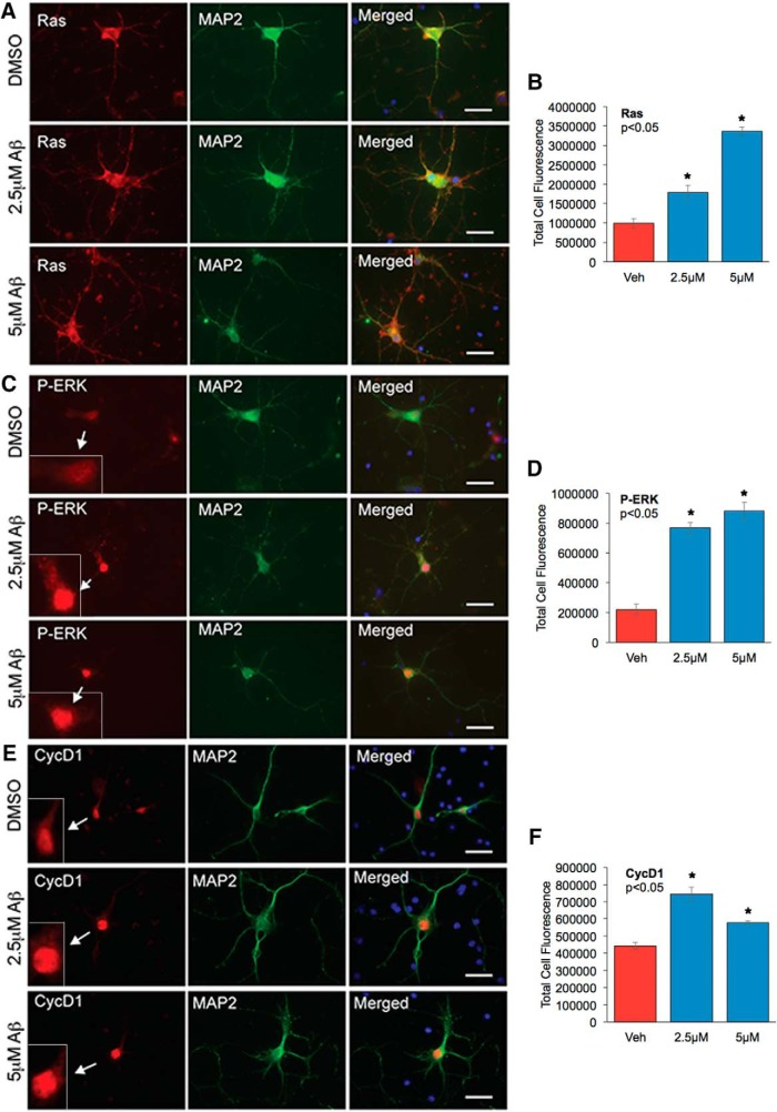 Analysis of cellular distribution of Ras and P-ERK in neurons treated with oligomeric Aβ42. Primary rat cortical neurons from E18 embryos were cultured for at least 5 d and treated with 2.5 or 5 µ m oligomeric Aβ42 for 24 h. DMSO treatment served as vehicle control. Neurons were immunostained with neuron-specific MAP2 mouse monoclonal antibody and Ras ( A ), P-ERK ( C ), or Cyclin D1 ( E ) rabbit polyclonal antibodies. Arrow points to the magnified image of the cell to show nuclear staining of P-ERK or Cyclin D1. Immunostaining was visualized with Alexa Fluor 594 (red) and 488 (green) fluorophores, respectively. Hoechst staining was used to visualize nuclei (blue). The staining was analyzed with AxioVision Rel 4.8 software for Zeiss microscope. The bar graphs represent the qualitative analyses of the corrected total cell fluorescence for Ras ( n = 30 neurons/group) ( B ), P-ERK ( n = 30 neurons/group) ( D ), and Cyclin D1 ( n = 30 neurons/group) ( F ). Statistical analysis was performed using ANOVA, and the data are representative of three independent experiments. Magnification 63×.
