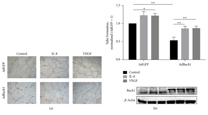 Exogenous administration of VEGF or IL-8 partially rescued Bach1-driven antiangiogenic response in HUVECs. (a) HUVECs were transfected with AdGFP or AdBach1 for 24 hours and then incubated with or without VEGF (50 ng/mL) or IL-8 (50 ng/mL) for 24 hours. Endothelial tube formation assay in Matrigel was performed in presence of VEGF or IL-8. Tube length was quantified and expressed as the fold change relative to AdGFP ( n = 4; ∗ P
