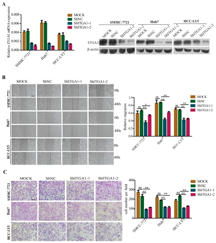 """Silencing ITGA1 expression inhibits HCC cell migration and invasion in vitro. ( A ) qRT-PCR and western blot analyzed the silencing efficiency of ITGA1 expression; ( B ) The in vitro migration ability of SMMC-7721, Huh7 and HCC-LY5 cells stably transfected with ITGA1 ShRNA or ShNC or MOCK cells were assessed using wound-healing assay (scale bar stand for 200 μm); ( C ) The in vitro invasion ability of those ITGA1 -silencing HCC cells were assessed by trans-well assay (scale bar stand for 100 μm). (""""ns"""" indicates no statistical significance, * p"""