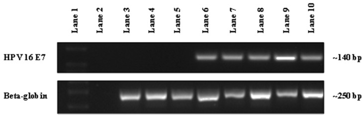 The detection of human papillomavirus (HPV)-16 DNA in patient oral rinse samples from UQ Dental School Clinic by PCR. Representative gel image showing the detection of HPV-16 DNA in patient oral rinse samples using HPV-16 NB2 primers (~140 bp) with beta-globin used as an internal control (~250 bp). Lane 1 represents DNA Ladder; Lane 2 represents non-template control; Lanes 3–5 (134, 144 and 145) represent the absence of HPV-16 DNA in patient samples; Lanes 6–8 (236, 1338 and 1368) represent the presence of HPV-16 DNA in patient samples and Lane 9 (93VU147T) and 10 (Caski) represent HPV-16 positive cancer cell lines.