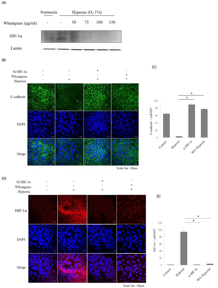 Wheatgrass inhibits the hypoxia-mediated EMT process by inhibiting the activation of <t>HIF-1α</t> in airway epithelial cells. (A) A549 cells were treated with wheatgrass at the indicated concentrations for 24 h, and nuclear protein fractions were analyzed by immunoblotting with an anti-HIF-1α antibody. (B and C) Cells were transfected with either si-HIF-1α, si-negative control (NC), wheatgrass (150 µg/mL), or hypoxia only as indicated. E-cadherin expression levels (green) were analyzed by immunofluorescence analysis. (D and E) HIF-1α expression levels (red) were visualized by immunofluorescence analysis ( * P