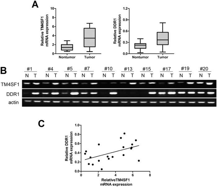 TM4SF1 correlates with DDR1 expression in specimens of pancreatic cancer. ( A , B ) TM4SF1 and DDR1 expression levels in twenty pairs of pancreatic cancer tissue samples were detected by qRT-PCR. TM4SF1 and DDR1 mRNA expression levels were both higher expressed in pancreatic cancer tissues compared with adjacent non-tumor samples. ( C ) scatter plots showed a positive correlation between TM4SF1 and DDR1 at mRNA expression level in pancreatic cancer.
