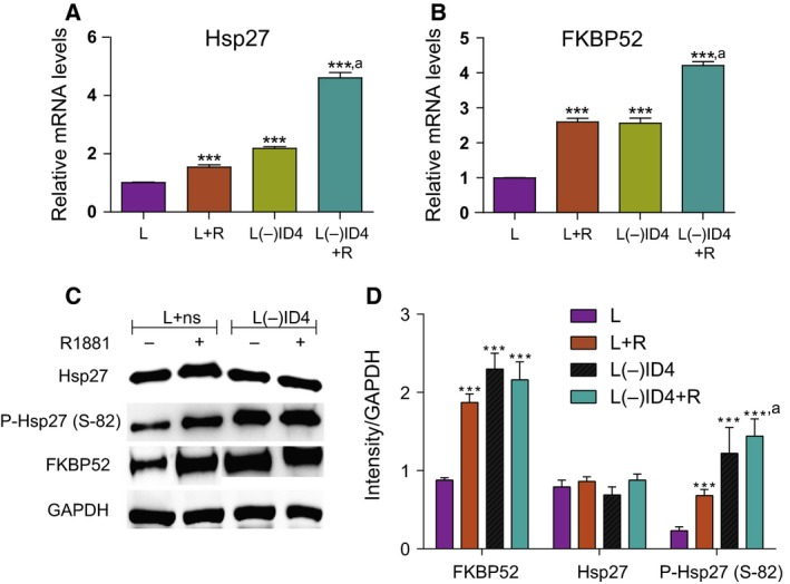 Hsp27 and FKBP 52 expression in L+ns and L(−) ID 4 cell lines. (A, B) Comparison of AR co‐chaperones Hsp27 (A) and FKBP 52 (B) mRNA levels in L+ns and L(−) ID 4 cells by q RT ‐ PCR analysis. Cells were treated for 24 h in the absence or presence of R1881 (10 n m ) in 10% cs FBS . Data were normalized to GAPDH followed by relative expression compared with the respective genes in L+ns (set to 1). (C) Protein levels of AR co‐chaperones Hsp27, phosphorylated (p) Hsp27 [Ser82], and FKBP 52 in L+ns and L(−) ID 4 cells. (D) Semiquantitative FKBP 52, Hsp27, and P‐Hsp27 (S‐82) protein levels normalized to GAPDH and then to the individual protein levels in L+ns and L(−) ID 4 cells. Data are mean ± SEM ( n = 3; ***, *** ,a : P