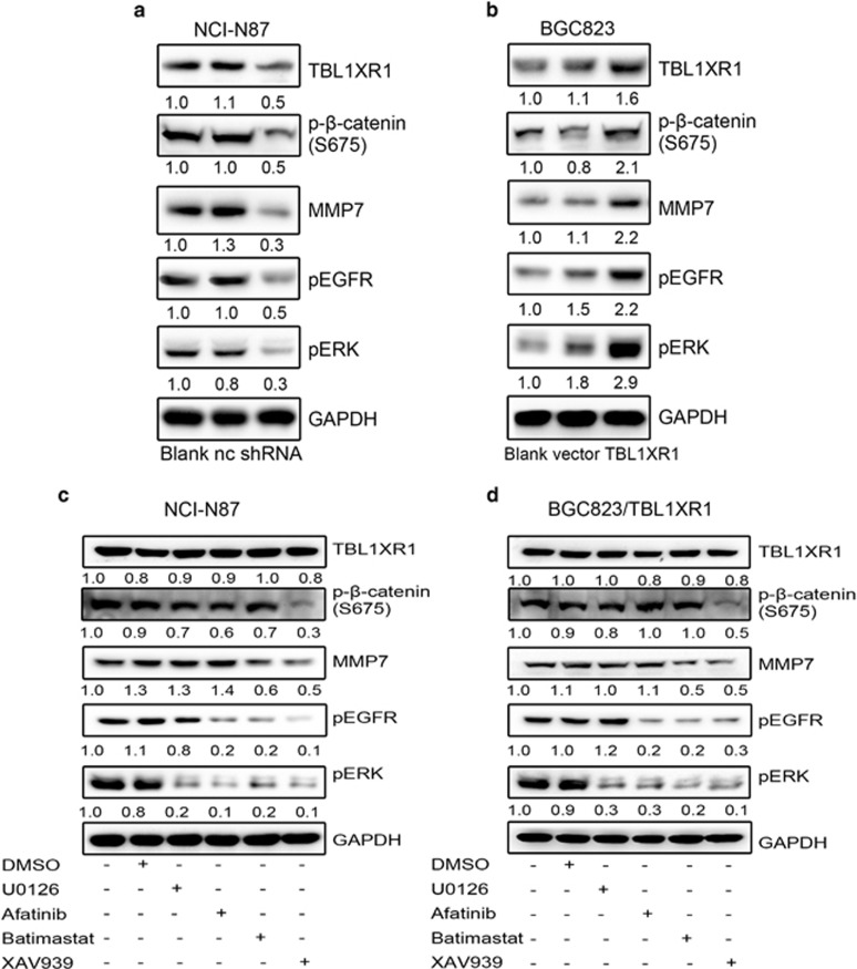 The activation of ERK1/2 induced by TBL1XR1 is mediated via the β-catenin/MMP7/EGFR signalling pathway. ( a ) and ( b ) The expression levels of TBL1XR1, p-β-catenin, MMP7, pEGFR and pERK1/2 in NCI-N87/TBL1XR1-shRNA cells ( a ) and BGC823/TBL1XR1 cells ( b ) were detected by western blot analysis. ( c ) and ( d ) The expression levels of TBL1XR1, p-β-catenin, MMP7, pEGFR and pERK1/2 in NCI-N87 cells ( c ) and BGC823/TBL1XR1 cells ( d ) in the presence of XAV939 (10 μ M ), Batimastat (10 μ M ), Afatinib (5 μ M ) and U0126 (20 μ M ) were detected by western blot analysis. Densitometry shows relative protein expression.