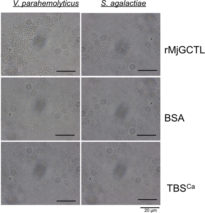 Bacterial agglutination activity of rMjGCTL with Gram-negative V. parahaemolyticus and Gram-positive S. agalactiae . Bacterial suspensions were incubated with rMjGCTL, BSA as the protein control, and TBS-Ca 2+ (TBSCa) as the negative control.