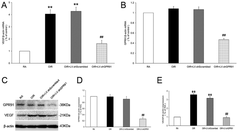 Inhibition of VEGF expression in the retinas of OIR rats following intravitreal injection of LV.shGPR91 particles. ( A ) qRT-PCR analysis of VEGF mRNA in P18 OIR rat retinas and age-matched RA rats. ( B ) qRT-PCR analysis for GPR91 mRNA in P18 OIR rat retinas and age-matched RA rats. ( C ) Western blot analysis of the GPR91 and VEGF proteins in samples from each group. ( D , E ) Quantitative analysis of banddensities. Each column denotes the mean ± SD (n = 6). ** P