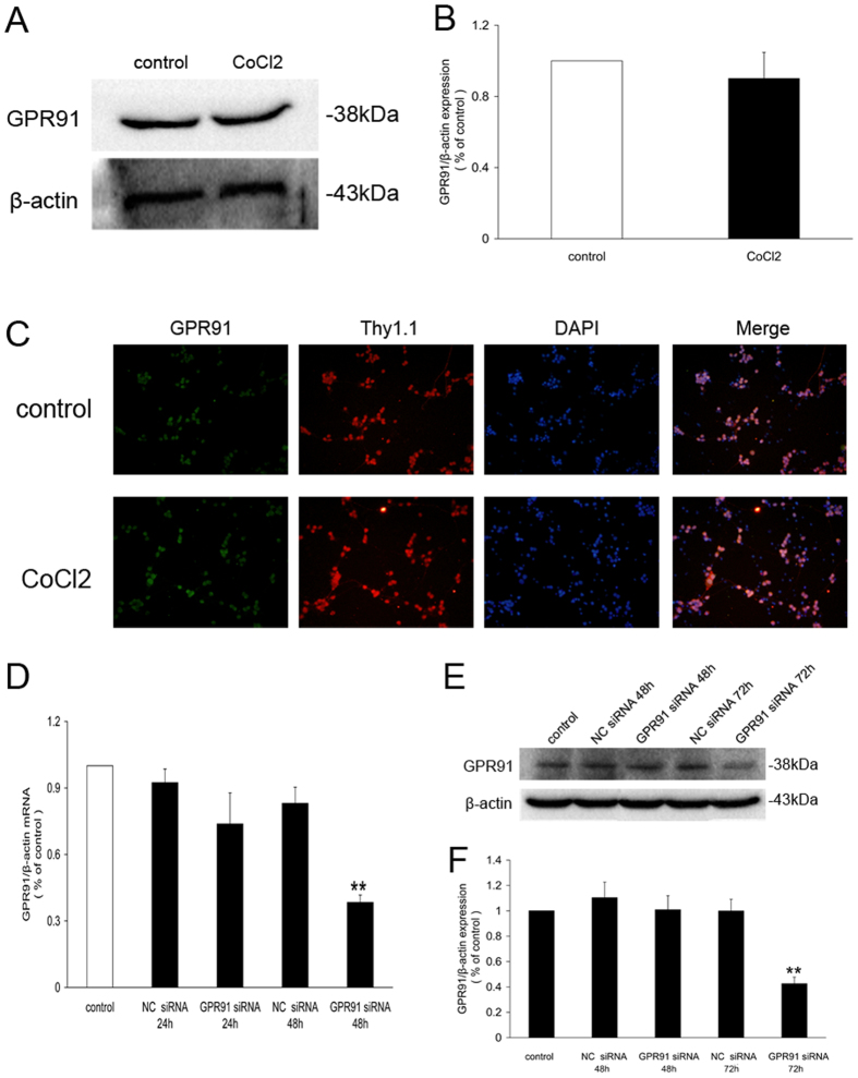 Distribution of GPR91 in the retinal ganglion cells. ( A ) Western blot analysis of GPR91 protein expression in retinal ganglion cells treated with CoCl 2 for 24 h. ( B ) Quantitative analysis of band density. Each column denotes the mean ± SD (n = 3). ( C ) Immunofluorescence showing GPR91 expression in the cytoplasm of retinal ganglion cells. Green fluorescence shows the distribution of the GPR91 protein. Red fluorescence shows the distribution of the retinal ganglion cell marker Thy1.1 protein. Blue fluorescence shows nuclei stained with 4,6-diamidino-2-phenylindole (DAPI). The right column shows the merged pictures. ( D ) Changes in mRNA levels (as determined using qRT-PCR) of GPR91 in samples from each group. ( E ) Western blot analysis of the GPR91 protein in samples from each group. ( F ) Quantitative analysis of the band density of GPR91/β-actin. Each column denotes the mean ± SD (n = 3). ** P