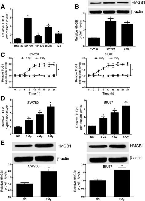 Radiation promotes the TUG1 and HMGB1 expression in bladder cancer cell lines. a qRT-PCR analysis was conducted to detect the TUG1 expression in bladder cancer cell lines SW780, HT1376, BIU87 and T24 and normal bladder epithelial cell line HCV-29. b The protein level of HMGB1 was determined by western blot in SW780 and BIU87 cells. c TUG1 expression was detected in SW780 and BIU87 cells every 3 h after 0 or 2 Gy of ionizing radiation treatment. d TUG1 expression was measured in SW780 and BIU87 cells after different doses (0, 2, 4, 6 Gy) of ionizing radiation treatment for 24 h. e The HMGB1 protein level was upregulated after SW780 and BIU87 cells treated with 2 Gy of ionizing radiation for 24 h. * P
