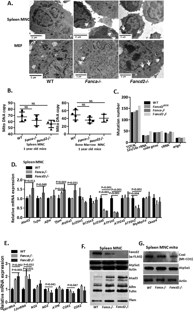 Dysregulation of mitochondrial genes in the absence of Fancd2 or Fanca. ( A ) Transmission electron microscopy of spleen MNCs and MEFs from WT, Fanca −/− and Fancd2 −/− mice. Swollen mitochondria with disorganized cristae are indicated with a white arrow. ( B ) The mtDNA copy number in bone marrow MNCs and spleen MNCs was analyzed by QPCR using primers against mtDNA and nuclear DNA (3 mice for each genotype). No significant difference was observed between the one-year old WT, Fanca −/− and Fancd2 −/− mice with Student's t-test analysis. ( C ) To analyze mtDNA integrity in FA mice, 16 kb mtDNA of 2 month old mice spleen MNCs was amplified. The PCR product was subjected to small genome sequencing. The Fancd2 −/− mtDNA shows slightly higher mutation rates compared to WT, Fancd2 KI / KI and Fanca −/− mice, especially in the 16 s/12 s rRNA region. ( D ) Quantitative PCR analysis shows up-regulation of genes associated with mitochondrial biogenesis (Atad3, Tufm, Tfam) and down-regulation of genes involved in mitochondrial oxidative phosphorylation (Atp1a1, Atp2a2, Scl25a5) in Fanca −/− and Fancd2 −/− spleen MNCs compared to WT spleen MNC cells. The data represent a summary of more than three mice of each genotype from two independent experiments. The P values indicated were analyzed using Student's t-test analysis. ( E ) For mtDNA-encoded genes, quantitative PCR analysis shows up-regulation of the 16 s rRNA and 12 s rRNA and down-regulation of Cox-1 and Nd2 expression in the Fanca −/− and Fancd2 −/− spleen MNCs comparing to WT cells. ( F ) Western blot shows increased expression of Atad3, Tufm, Aifm in the mitochondrion fraction from Fanca −/− and Fancd2 −/− spleen MNCs. ( G ) Western blot shows decreased Cox-1 expression in the mitochondrion fractions of Fanca −/− and Fancd2 −/− spleen MNCs. Full-length blot is presented in Supplementary Fig. 5 .