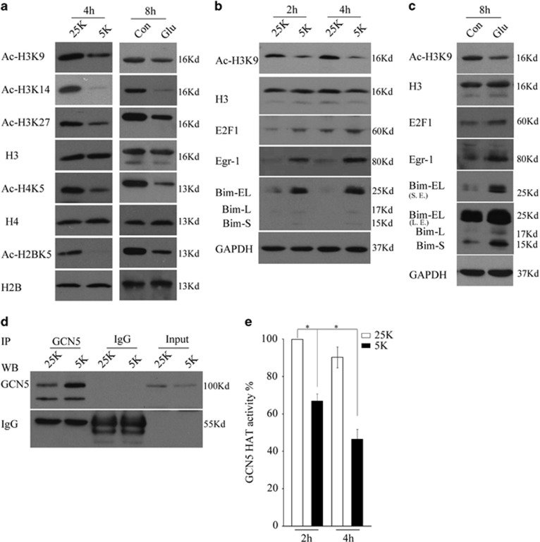GCN5 loses its activity following potassium deprivation or glutamate exposure. ( a ) DIV 7 CGNs treated with 25K or 5K for 4 h, or glutamate (Glu, 100 μ M), were subjected to WB to detect Ac-H3K9, Ac-H3K14, Ac-H3K27, H3, Ac-H4K5, H4, Ac-H2BK5 and H2B. Con: control. ( b ) CGNs treated with 25K and 5K for two time durations 2 and 4 h were subjected to WB to detect Ac-H3K9, H3, E2F1, Egr-1 and Bim. ( c ) CGNs exposed to glutamate in 25K media for 8 h were subjected to WB to detect Ac-H3K9, H3, E2F1, Egr-1 and Bim. ( d and e ) CGNs treated with 25K and 5K for 4 h were subjected to IP with anti-GCN5 antibody and then to WB to detect the precipitated GCN5 (partial) and the left precipitated complexes were subjected to in vitro HAT activity. Mean±S.E.M., n =3, * P