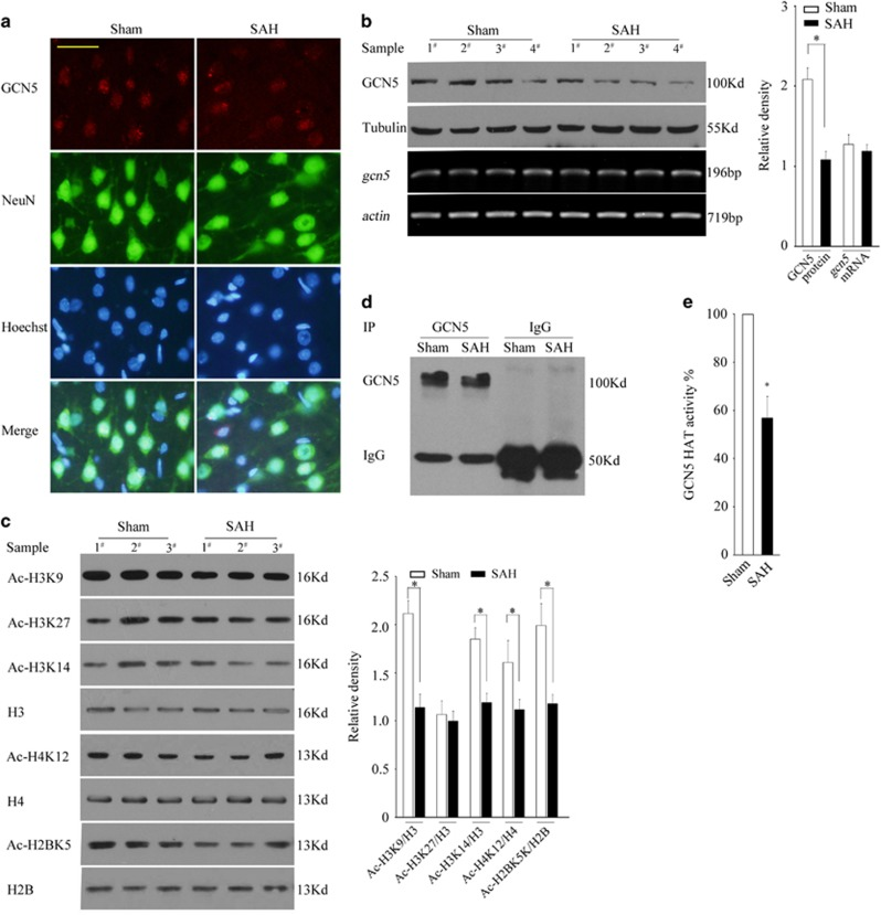 GCN5 loses its activity following SAH. ( a ) The location of GCN5 in the neurons of sham or SAH rat were determined by co-staining with GCN5 and NeuN, scale bar=20 μ m. ( b ) The protein expression levels or mRNA levels of GCN5 were determined by WB or RT-PCR at 24 h after SAH. ( c ) At 24 h after SAH, the homogenized brain tissues were subjected to a histone extraction followed by WB to detect Ac-H3K9, Ac-H3K14, Ac-H3K27, H3, Ac-H4K12, H4, Ac-H2BK5 and H2B. ( d and e ) At 24 h after SAH, the homogenized brain tissues were subjected to IP and the partial precipitated complexes were subjected to WB and the left ones were subjected to in vitro HAT activity assay. The values are expressed as mean±S.E.M., * P