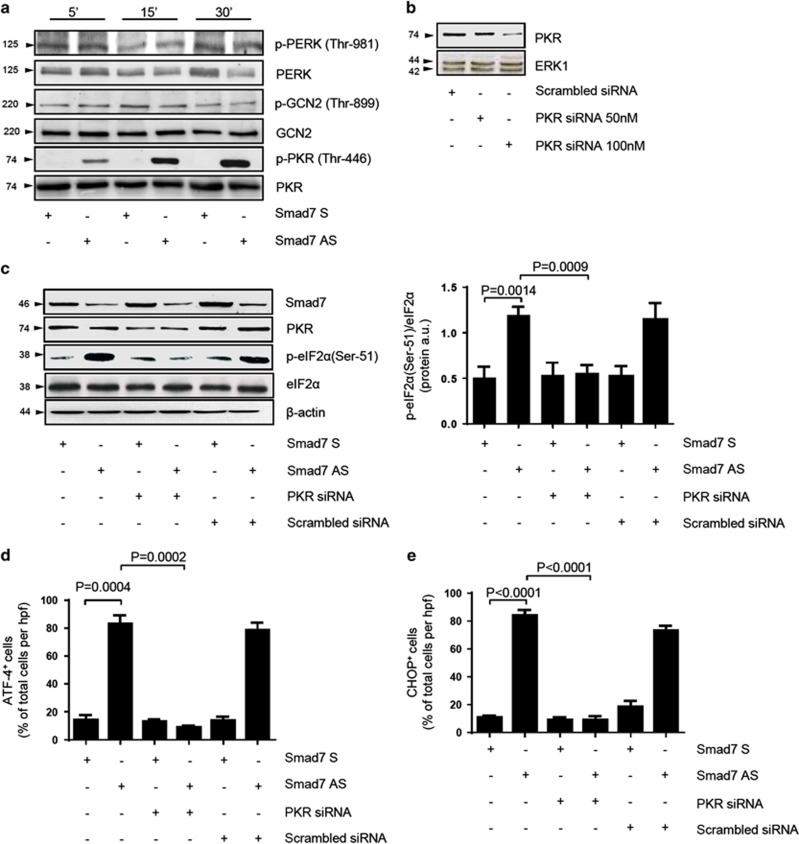 Smad7 antisense (AS)-induced eIF2 α phosphorylation in DLD-1 cells relies on PKR activation. ( a ) DLD-1 cells were transfected with either Smad7 sense (S) or AS oligonucleotide (both used at 2 μ g/ml). After 24 h, cells were washed with PBS and cultured for 5, 15 and 30 min. p-PERK (Thr-981), p-GCN2 (Thr-899) and p-PKR (Thr-446) expression was assessed by western blotting. One of three representative experiments is shown. ( b ) Representative western blots for PKR in extracts of DLD-1 cells transfected with either scrambled-siRNA (100 nM) or increasing doses (50–100 nM) of PKR-siRNA for 24 h. ERK1 was used as a loading control. One of three representative experiments is shown. ( c ) Left panel: Cells were transfected with either Smad7 S or AS oligonucleotide (both used at 2 μ g/ml). After 24 h, cells were incubated with either PKR-siRNA or scrambled-siRNA (both used at 100 nM) for further 24 h and then washed with PBS and cultured for additional 6 h. Smad7, PKR, p-eIF2 α (Ser-51) and eIF2 α were assessed in extracts of DLD-1 cells by western blotting. β -Actin was used as a loading control. Right panel: Quantitative analysis of p-eIF2 α (Ser-51)/eIF2 α protein ratio in total extracts of DLD-1 cells as measured by densitometry scanning of western blots. Values are expressed in arbitrary units (a.u.) and indicate the mean±S.E.M. of three experiments. ( d and e ) Representative histograms showing the percentage of DLD1 cells expressing ATF4 ( d ) and CHOP ( e ). Cells were transfected with either Smad7 S or AS oligonucleotide (both used at 2 μ g/ml). After 24 h, cells were incubated with either PKR-siRNA or scrambled-siRNA (both used at 100 nM) for further 24 h and then washed with PBS and cultured for additional 12 h. Data are presented as mean values of positive cells per high power field (h.p.f.)±S.E.M. of three independent experiments, in which at least two sections per group were analyzed