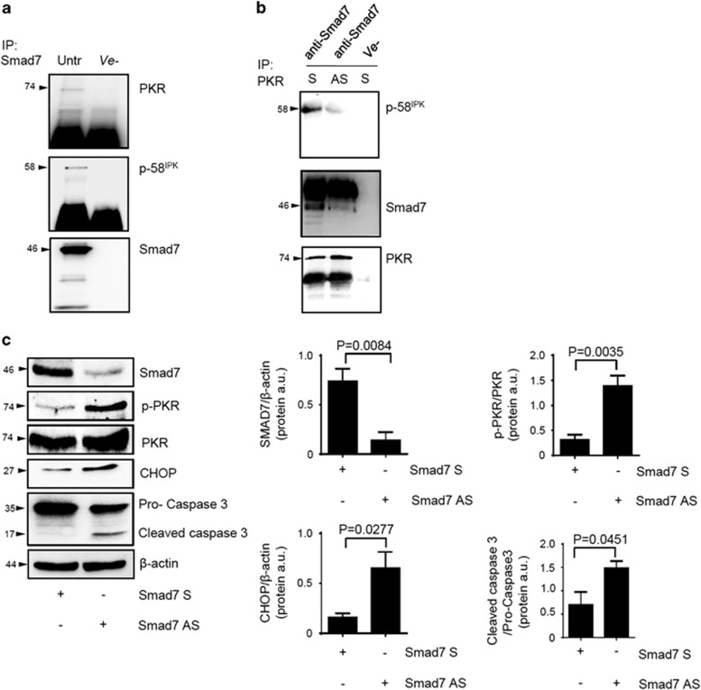 Smad7 knockdown prevents PKR-p-58 IPK interaction in DLD-1 cells and activates the PKR/CHOP axis in human CRC explants. ( a ) Total proteins extracted from DLD-1 cells were immunoprecipitated by an anti-human Smad7 or control isotype (ve−) antibody and then subjected to immunoblotting analysis using PKR, p58 IPK and Smad7 antibodies. ( b ) Total proteins extracted from DLD-1 cells transfected with either Smad7 sense (S) or antisense (AS) oligonucleotide (both used at 2 μ g/ml) were immunoprecipitated by an anti-human PKR or control isotype (ve−) antibody and then subjected to immunoblotting analysis using p58 IPK , Smad7 and PKR antibodies. One of three representative experiments is shown. ( c ) Freshly obtained CRC explants were cultured in the presence of Smad7 S or AS oligonucleotide (both used at 8 μ g/ml) for 24 h. Smad7, p-PKR, PKR, CHOP, procaspase-3 and cleaved caspase-3 protein expression were assessed by western blotting. One of four representative experiments is shown. Right panels: Quantitative analysis of Smad7/ β -actin, p-PKR/PKR, CHOP/ β -actin and cleaved caspase-3/procaspase-3 protein ratio in extracts of CRC explants measured by densitometry scanning of western blots. Values are expressed in a.u. (arbitrary units) and are the means±S.E.M. of four experiments