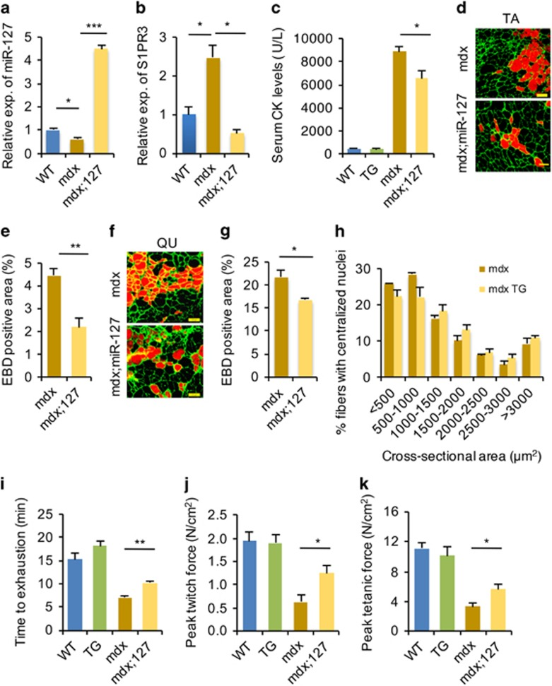 miR-127 ameliorates the dystrophic phenotype of mdx mice. ( a ) Fold overexpression of miR-127-3p in mdx;miR-127 mice, determined by quantitative real-time polymerase chain reaction (qRT-PCR). The data were normalized using U6. miR-127 expression levels were further normalized to the expression level of WT, defined as 1. ( b ) S1PR3 mRNA levels in mdx;miR-127 mice, determined by qRT-PCR. The data were normalized using GAPDH. S1PR3 expression levels were further normalized to the expression level of WT, defined as 1. ( c ) Serum CK levels in WT, miR-127 TG, mdx , and mdx;miR-127 mice at 3 month of age. ( d ) EBD uptake in TA muscles of mdx and mdx;miR-127 mice at 3 month of age. EBD was detected as a red signal under a fluorescence microscope. Laminin immunostaining is shown in green. Scale bars, 100 μ m. ( e ) The percentages of EBD + fiber areas in TA muscles from mdx and mdx;miR- 127 mice. ( f ) Representative images of EBD + areas in quadriceps muscles of mdx and mdx;miR-127 mice at 3 month of age. EBD was detected as a red signal under a fluorescence microscope. Laminin immunostaining is shown in green. Scale bars, 100 μ m. ( g ) The percentages of EBD + fiber areas in quadriceps (QU) muscles from mdx and mdx;miR-127 mice. ( h ) Cross-sectional areas of myofibers with centralized nuclei in TA muscles from mdx and mdx;miR-127 mice ( n =5 mice per group). ( i ) Three-month-old WT, miR-127 TG, mdx , and mdx;miR-127 mice were subjected to forced downhill running on a treadmill. Muscle performance was measured as total running time to exhaustion. ( j and k ) EDL muscles isolated from WT, miR-127 TG, mdx , and mdx;miR-127 mice were electrically stimulated in vitro to elicit tetanic contractions. Maximal twitch force ( j ) and peak tetanic forces ( k ) were determined. Values are presented as means±S.E. ( n =5 mice per genotype). * P