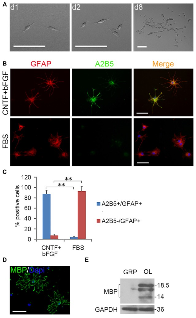 Expanded clones of A2B5 + cell expressed typical differentiation phenotype of tripotential glial restricted precursor (GRP) cells. (A) An example of an expanded clone in presence of EGF + PDGFaa. (B) A2B5 + clones were digested and replated into separate wells of 24-well plates and induced to differentiate for 5 days in the presence of bFGF + CNTF or FBS, A2B5 + /GFAP + and A2B5 − /GFAP + astrocytes were obtained, respectively. (C) Quantification of A2B5 + /GFAP + and A2B5 − /GFAP + astrocytes in the differentiation cultures exposed to bFGF + CNTF and FBS, n = 3. (D) A2B5 + cells were cultured in T3 for 5 days and MBP + Oligodendrocytes (OLs) can be detected. (E) The culture described in (D) was confirmed by western blotting with MBP antibody. Abbreviation: OL, oligodendrocyte. ** P