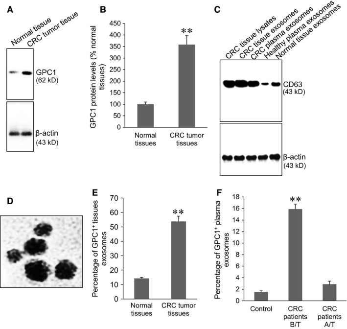 Isolation of GPC 1 + exosomes. ( A ) Representative Western blots of GPC 1 and β‐actin protein expression in tissues. ( B ) Semi‐quantitative analysis of GPC 1 protein expression in human normal colon tissues ( n = 89) and CRC tumour tissues ( n = 102). ** P