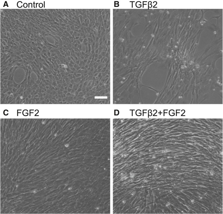 TGFβ2‐ and/or FGF2‐mediated phenotypic changes of LECs in vitro . Cultured MLECs were plated in 35 mm dishes at a density of 1 × 10 5 in DMEM with 10%FBS for 24 hrs. LECs were treated with 10 ng/ml of TGFβ2 and/or FGF2 in DMEM containing 0.1% BSA for 2 days. Phase contrast photomicrographs were taken with a digital camera. Data were from three experiments. Scale bar, 90 μm.