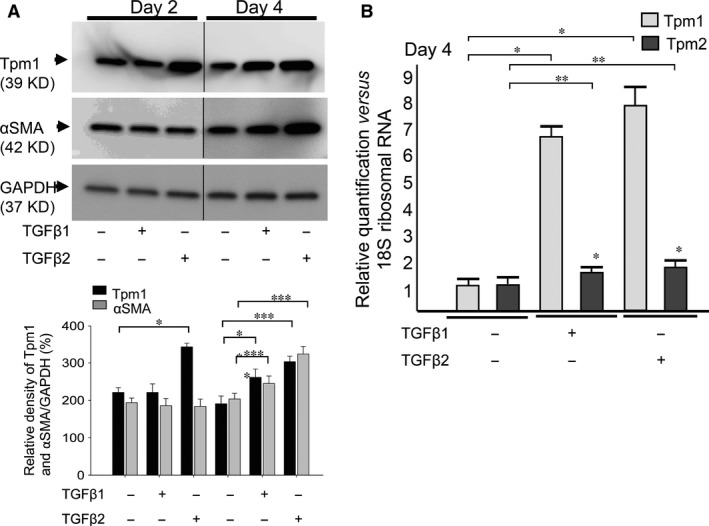 Expression of Tpm1/2 and αSMA in response to TGFβ1 and TGFβ2 in MLECs. Cultured MLECs were plated in 35 mm dishes at a density of 1 × 10 5 in DMEM with 10%FBS for 24 hrs. LECs were treated with 10 ng/ml of TGFβ1 or TGFβ2 in DMEM containing 0.1% BSA for 2 days. ( A ) Cell lysates were prepared, and Western blotting analysis was performed. αSMA was used as the marker of EMT. GAPDH was used for control of protein concentration on Western blot analysis. Relative densities of Tpm1/2, αSMA and GAPDH were determined using the Image Quant LAS 4000 (GE Healthcare UK Ltd. Buckinghamshire, England). Data are representative of three experiments. ( B ) Total RNA was prepared, and real‐time PCR analysis was performed. 18s ribosomal RNA was used for control of cDNA concentration on real‐time PCR analysis. Relative quantity of Tpm1/2 was determined using Prism 7300 System SDS RQ Study Software (Applied Biosystems ® ). Data were from three experiments and were reported as means ± S.D.s.