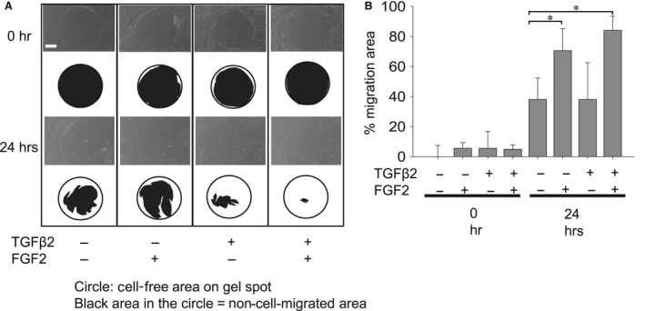 Migration of MLECs treated with/without TGFβ2 and/or FGF2. MLECs were plated in 24‐well plates pre‐coated with collagen type I, at a density of 1 × 10 5 in DMEM with 10%FBS for 24 hrs. Each plate contained 0.68 mm non‐toxic biocompatible hydrogel spot (Radius™ Gel) where cells cannot attach. After hydrogel removal to expose the cell‐free region, MLECs were treated with 0 or 10 ng/ml of TGFβ2 and/or FGF2 in DMEM containing 0.1% BSA for 24 hrs. Phase contrast micrographs were then taken with a digital camera. Data shown are representative of three experiments. The cell‐free area was analysed using MultiGauge Software (Fuji Film, Tokyo, Japan). Data were from three experiments and were reported as means ± S.D.s. Scale bar, 180 μm.