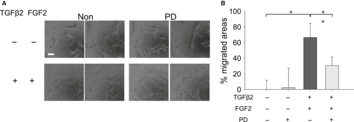Effect of MECK inhibitor (PD) on migration of MLECs treated with TGFβ2 and FGF2. MLECs were plated in 24‐well plates, pre‐coated with collagen type I, at a density of 1 × 10 5 in DMEM with 10%FBS for 24 hrs. After hydrogel removal to expose the cell‐free region, MLECs were treated with 0 or 10 ng/ml of TGFβ2 plus FGF2 with/without PD in DMEM containing 0.1% BSA for 24 hrs. Phase contrast micrographs were then taken with a digital camera. Data were from three experiments and were reported as means ± S.D.s. Scale bar, 180 μm.