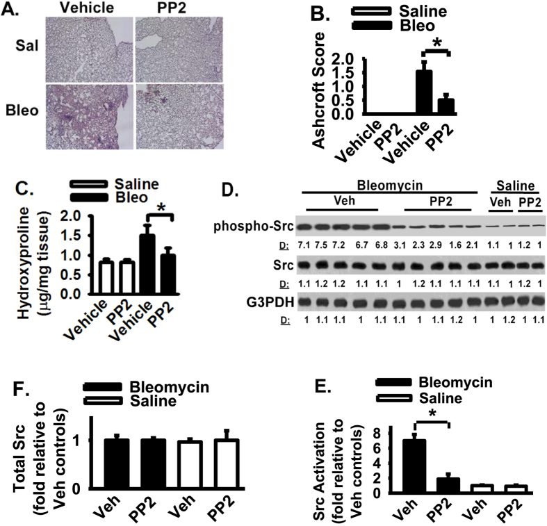 Src inhibitor protects lung fibrosis in bleomycin-challenged mice. ( A ) Mice were instilled with saline (Sal) or bleomycin (Bleo) and followed by daily treatment of PP2 (50 mg/kg, i.p. injection) or vehicle. Lung tissues at day 21 were HE stained (200×). ( B ) The severity of lung fibrosis was examined morphometrically and represented by Ashcroft Score. ( C ) Lung hydroxyproline level was measured and represented as % hydroxyproline normalized to that in vehicle-challenged mice. ( D ) Lung tissue lysates were Western blotted. ( E ) Densitometry of Src activation from Panel D. pY416 of Src levels were normalized to total Src levels. Data were represented as the fold of Src activation relative to that in the control vehicle and saline treated group. ( F ) Densitometry of total Src protein from Panel D. Src levels were normalized to G3PDH levels. Data were represented as the fold of Src relative to that in the control vehicle and saline treated group. Per experimental group had 8–12 mice. Data were represented as mean + SE. * represents p