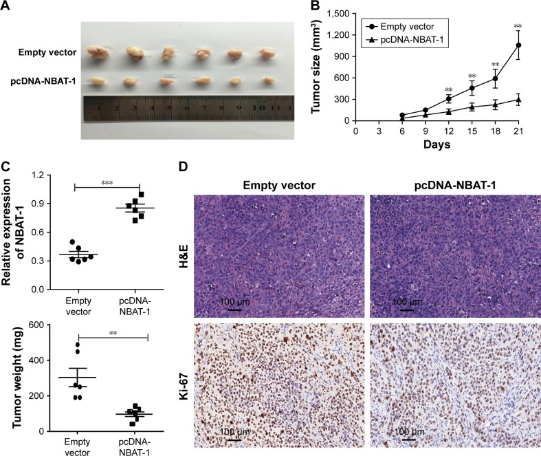 NBAT-1 suppresses tumor growth in vivo. Notes: ( A and B ) Empty vector and pcDNA-NBAT-1 were transfected into OVCAR-3 cells, which were injected in the nude mice (n=6). Tumor volumes were calculated after injection every 3 days. ( C ) Tumor weight are represented as mean of tumor weights ± SEM. qRT-PCR was performed to detect the average expression of NBAT-1 in xenograft tumors (n=6). ( D ) The tumor sections were under hematoxylin-eosin staining and immunohistochemistry staining using antibodies against Ki-67. ***( P