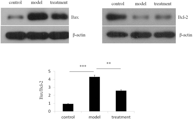 Ibutilide treatment attenuates tunicamycin induced increase in Bax/ Bcl-2 ratio. Protein expression of Bax and Bcl-2 were analyzed from lysate derived from RNC treated with either tunicamycin alone (model), tunicamycin and ibutilide (treatment) or untreated cardiomyocytes (control). Representative immunoblots of lysate immunoblotted with antibodies specific for Bax or BCL-2 are shown. The quantification of normalized band densitometry of Bax was divided by that of Bcl-2 and the results are graphed. All data are shown as mean ± SE ( n = 3 per group). *p
