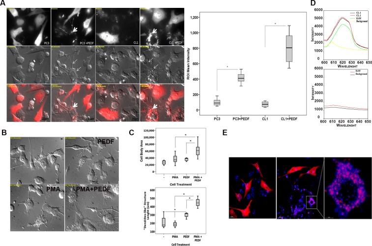PEDF increases the phagocytosis of PCa cells by RAW 264.7 macrophages. ( A, Left ) Representative fluorescent and Nomarski images of PC3-Ctrl or CL1-Ctrl PCa cells (Red) co-cultured with RAW 264.7 macrophages ± PEDF (10 nM). Thin arrows denote macrophages differentiation. Thick arrows show tumor cell debris (Red) within the macrophages. Nomarski and confocal images were obtained using the Nikon T1-E microscope with A1 confocal and STORM super-resolution with a 63x objective (N.A. 1.4; oil). After imaging, Regions of Interest (ROIs) were selected, and the intensity surface plot function (NIS-Elements AR 4.00.03) was used to measure the signal intensity of each ROI. ROI mean intensity was calculated from  > 30 representative ROI.  Right:  Quantification of tumor cell phagocytosis. Data points represent ROI mean intensity ± SD of triplicate samples per treatment condition from three independent experiments. Data were represented using a boxplot graph (SPSS 23 software for Windows) showing the median, inter-quartile range, upper and lower quartiles, and whiskers. Statistical analysis was performed using the Student's t test. *: P
