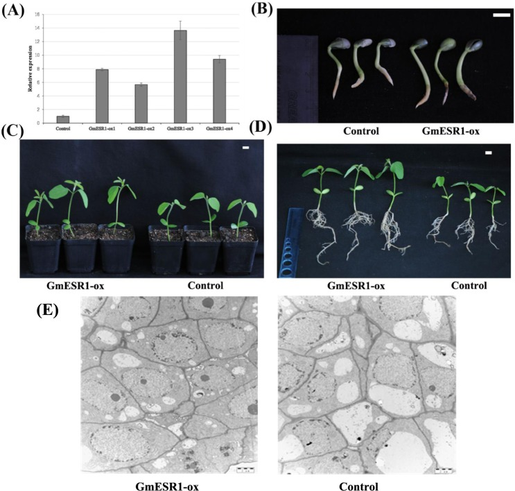 Analysis of GmESR1 transgenic soybean plants. (A) Relative expression level of GmESR1 in control group and four independent GmESR1 -ox lines. Transcript abundance was normalized against the reference gene GmActin4 . (B) Comparison of elongation rate in GmESR1 -ox and control soybean plants during germination 5 d after planting. (C) Comparison of shoot elongation rate in GmESR1 -ox and control soybean seedlings 15 d after planting. (D) Comparison of root elongation in GmESR1 -ox and control soybean seedlings 15 d after planting. The experiments were performed on three biological replicates with their respective three technical replicates. Error bars represent the standard error of the mean. Scale bars = 1.0 cm. (E) Comparison of the bud cells in GmESR1 -ox and control soybean plants during the bud induction. Scale bars = 5μm.