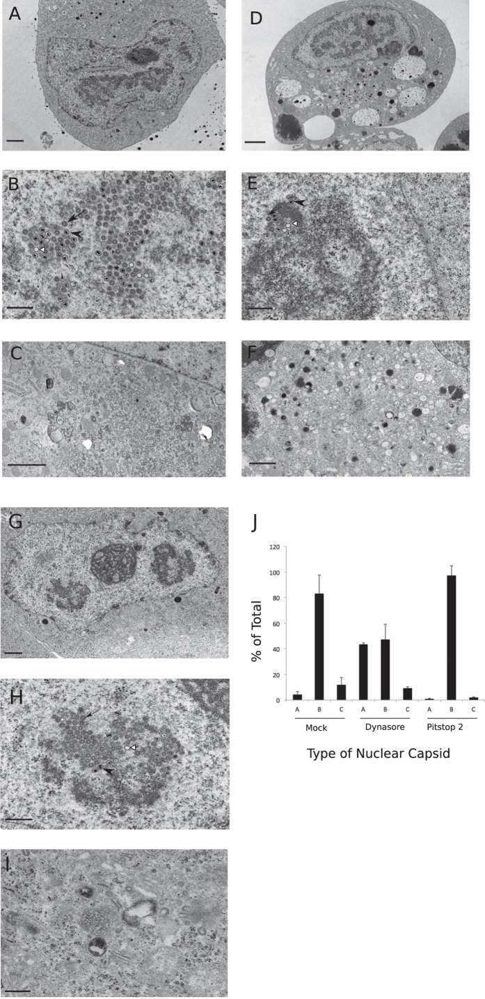 Transmission electron micrographs of HF cells that were either mock-treated ( A , B and C ) or treated with dynasore (100 μM) ( D , E and F ) or pitstop 2 (25 μM) ( G , H and I ) and then infected with HCMV (AD169) at an MOI of 3.0 and incubated in the presence of indicated drug for 4 days before processing for TEM. Representative whole cell ( A , D , G ), nuclear ( B , E , H ) or cytoplasmic ( C , F , I ) sections of the infected cell are shown in the micrographs. ( J ) Quantification of nuclear capsid types from the above treatments. A total of 400, 318 or 674 capsids were counted for mock, dynasore and pitstop 2 treatments, respectively. Scale: 2 μm ( A , C , D ), 1.0 μm ( F , G ), 0.5 μm ( B , E , H , I ). A- (white arrowheads), B- (black arrows), and C- capsids (black arrowheads).