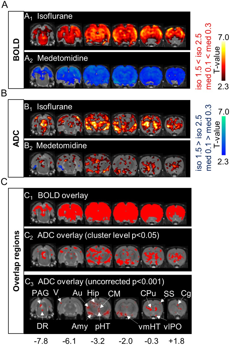 Comparison of Blood Oxygenation Level—Dependent (BOLD) and Apparent Diffusion Coefficient (ADC) maps under both anesthetic conditions. (A, B) T-maps of changes in BOLD signals (A 1 ; n = 6, A 2 ; n = 7) and ADC (B 1 ; n = 10, B 2 ; n = 8) under isoflurane (iso) and medetomidine (med) dosage conditions (six out of ten slices are shown. Hot colors mean an increase in BOLD or ADC of high dose (cluster-level corrected p