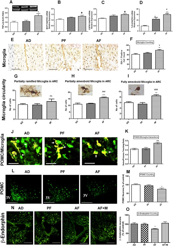 Effect of fetal alcohol exposure on microglia and proopiomelanocortin neuron interaction in the hypothalamus. Showing the changes in the protein level of inflammatory cytokines TNF-α ( a ), mRNA level of cytokine MCP1 ( b ), cytokine receptors CSFR1 ( c ), and TLR4 ( d ) in the mediobasal hypothalamus (MBH) of alcohol-fed (AF), pair-fed (PF) and ad lib-fed rats on postnatal day (PND) 6 as determined through Western blot and q-RTPCR, respectively. Representative photographs of IBA-1-positive cells ( e ) and histograms representing the mean ± SEM number of IBA-1-positive cells ( f ) in the MBH of AF, PF, and AD rats on PND 6. Scale bars shown in three photographs of panel e are 200 μm/each. Characterization of IBA-1-stained microglial cells in the mediobasal hypothalamus based on circularity (partially ramified ( g ); partially amoeboid ( h ); fully amoeboid ( i )) in AD, PF, and AF of rat pups on PND 6. Scale bars in these figures are 20 μm/each. Representative 3D rendering of IBA-1 microglia and GFP-POMC neurons interacting ( j ). Scale bars are 20 μm/each. Quantification of soma/process interaction of microglia with POMC neurons ( k ). Representative images of POMC-stained neurons in the arcuate nucleus ( l ) and histograms representing the mean ± SEM number of POMC-positive cells in the arcuate nucleus of AF, PF, and AD rats on PND 6 ( m ). Scale bars are 200 μm/each. Representative images of ß-endorphin-stained neurons in the arcuate nucleus ( n ) and histograms representing the mean ± SEM number of ß-endorphin-positive cells in the arcuate nucleus of AD, PF, and AF and AF + M (minocycline-treated and alcohol-fed) rats on PND 6 ( o ). Scale bars are 200 μm/each. Data are represented as mean ± SEM ( n = 5–7). The differences between AD, PF, and AF were compared by one-way analysis of variance (ANOVA) and the Newman-Keuls posttest. * p
