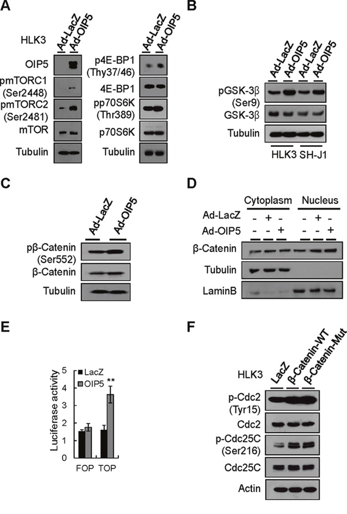 Activation of the mTORC1 and β-catenin signaling pathways by OIP5 A . Activation of mTORC1 in HLK3 cells transiently infected with Ad-OIP5 compared to Ad-LacZ control cells on Western blot analysis. B . Phosphorylation of <t>GSK-3β</t> by OIP5 in HLK3 and SH-J1 cells transiently infected with Ad-OIP5 or Ad-LacZ adenovirus (n = 3). C . Phosphorylation of β-catenin at the S552 site by OIP5 in HLK3 cells transiently infected with Ad-OIP5 or Ad-LacZ adenovirus (n = 3). D . Immunoblot analysis of nuclear and cytoplasmic levels of β-catenin in HLK3 cells transiently infected with Ad-OIP5 or Ad-LacZ adenovirus (n = 3). E . TCF/LEF-dependent transcriptional activity of β-catenin in HEK293T cells transfected with TOP/FOP flash reporter plasmids. Assays of relative luciferase activity in cells were performed (n = 3). Each bar represents mean ± SD. ** P