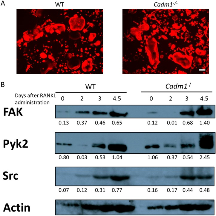 Cadm1 ablation enhances bone-resorbing activity of osteoclasts. (A) BMMs from wild-type or Cadm1 KO mouse were cultured in the presence of M-CSF (50 ng/ml) and RANKL (25 ng/ml) for 4 days, stained with rhodamine phalloidin to visualize actin protein, and observed under a fluorescence microscope. Bar, 100 μm. (B) Whole cell lysates from wild-type or Cadm1 KO osteoclasts were subjected to western blotting using antibodies against FAK, Pyk2 and Src. Actin protein expression served as an internal control. Protein levels relative to actin were quantified by densitometry and are shown below.
