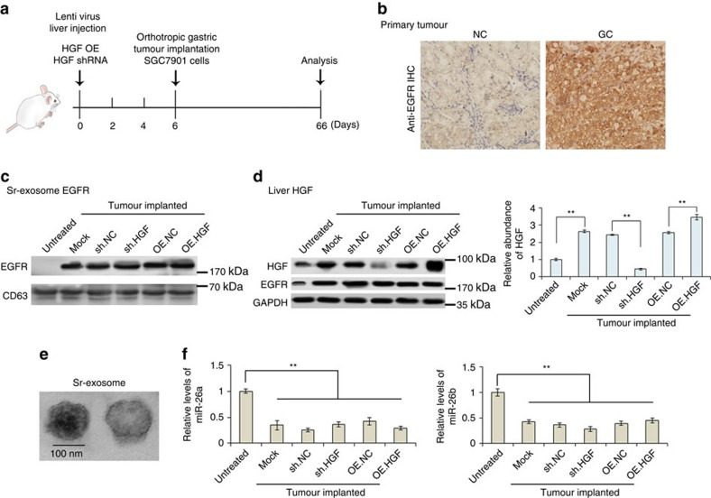 In vivo verification for exosome-EGFR activates liver HGF by inhibiting miR-26a/b. The livers of mice were pre-treated with HGF shRNA or HGF overexpressing lentivirus by multi-point injection, followed by orthotopic tumour implantation on the 6th day; finally, mice were killed and data were analysed on the 66th day. ( a ) A flow chart depicting the in vivo experimental design. ( b ) Immunohistochemistry (IHC) analysis of EGFR expression in primary gastric tumour. ( c ) Western blotting analysis of exosome EGFR in the serum of tumour-implanted mice ( n =30). ( d ) Levels of HGF in liver tissues of GC tumour-implanted mice ( n =30). ( e ) Electron-microscope scanning of exosomes isolated from mouse serum. ( f ) Relative levels of miR-26a/b in mouse liver tissues ( n =30). The data represent the mean±s.e.m. ** P