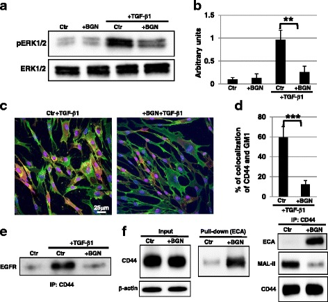 Raft localization of CD44 after TGF-β1 stimulation was inhibited by reduced sialylation with BGN. a , b Western blot analysis of phosphorylated extracellular signal-related kinase ( pERK ) was performed in control ( Ctr ; vehicle-treated EP fibroblasts in DMSO) and GalNAc-α- O -benzyl ( BGN ; 2 mM)-treated EP fibroblasts. The histogram ( b ) shows the mean densitometric analysis ± SD for the phosphorylated proteins normalized to the loading control. Values were obtained from three independent experiments. **P