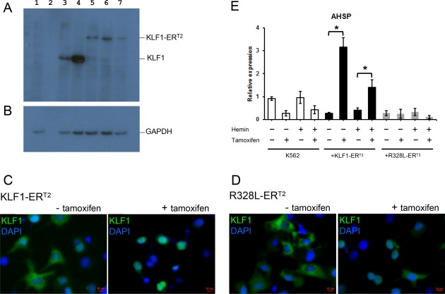 Functional assessment of KLF1‐ER T2 and R328L‐ER T2 fusion proteins. ( A, B) : Western blot analyses of cell lysates isolated from untransfected COS7 cells (lane 1), COS7 cells transfected with pCAG‐KLF1 (lane 3); pCAG‐R328L (lane 4); pCAG‐KLF1‐ER T2 (lane 5); pCAG‐R328L‐ER T2 (lane 6) and the murine CAG‐ KLF1‐ER T2 (lane 7) using an anti‐KLF1 antibody (A) and GAPDH as a loading control (B). Lane 2 is blank. ( C, D) : Immunofluorescence staining of COS7 cells transfected with either the CAG‐KLF1‐ER T2 (A) or CAG‐R328L‐ER T2 (B) constructs then stained with anti‐KLF1 antibodies (green) and the DAPI nuclear dye (blue) in the presence and absence of tamoxifen as indicated. (Scale bar 10 μm). (E) : Quantitative reverse‐transcriptase polymerase chain reaction analyses of RNA isolated from control and hemin and/or tamoxifen‐treated K562 cells and K562 cells transfected with either CAG‐KLF1‐ER T2 or CAG‐R328L‐ER T2 vectors using primers for the KLF1 target gene, AHSP . Data represent three independent experiments and error bars represent SEM. p values were calculated using using one‐way ANOVA followed Tukey's multiple comparisons test. (* p