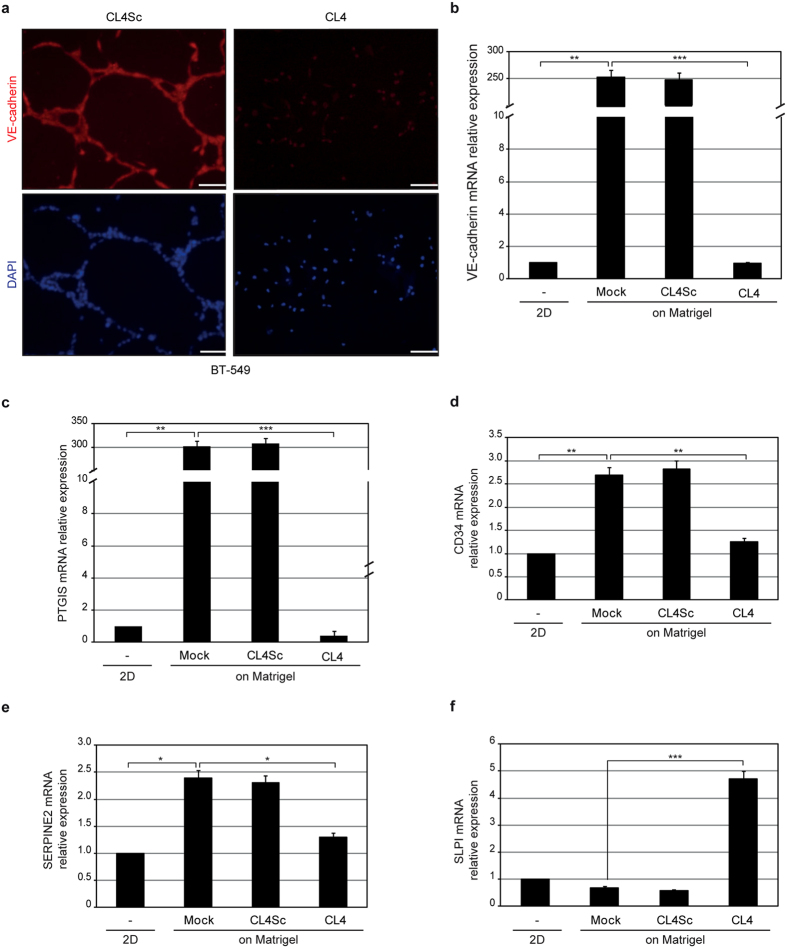 The anti-EGFR aptamer blocks the endothelial trans-differentiation of BT-549 cells. ( a ) BT-549 cells, seeded on Matrigel in the presence of 200 nmol/l CL4 or CL4Sc for 24 hours, were stained with anti-VE-cadherin antibody, visualized by fluorescence microscopy and photographed; nuclei were stained with DAPI. Magnification 20×, scale bar = 100 μm. ( b–f ) BT-549 cells were left untreated or treated as in ( a ) and mRNA levels of the indicated VM-genes were determined by RT-qPCR. Bars depict means ± SD of three independent experiments. *** P