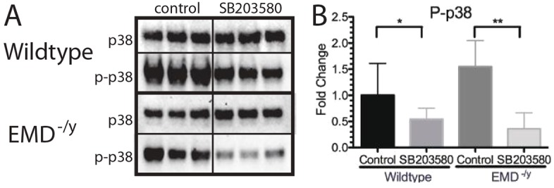 p38 MAPK phosphorylation is decreased by treatment with the p38 MAPK inhibitor SB203580 in differentiating myogenic progenitors. (A) Western blotting of whole cell lysates treated with SB203580 was performed to analyze activation of p38 MAPK during differentiation of wild-type or emerin-null progenitors. DMSO treatment was the control. Three biological replicates are shown for each treatment. (B) Densitometry was performed and phosphorylated p38 MAPK was normalized to total p38 MAPK protein in each sample. Levels of phosphorylated p38 MAPK for each condition were normalized to DMSO-treated wild-type cells. Results are mean±s.d. of n =3 for each condition; * P