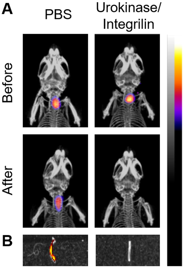 Monitoring of antithrombotic therapy in mice using FLECT/CT. Thrombus was induced in the left carotid artery of mice by ferric chloride before the i.v. injection of activated-platelet targeting <t>fluoroprobe,</t> Targ-Cy7. A) Representative comparison of maximum-intensity projection FLECT/CT images of mice before and after treatment with either PBS or combined thrombolytic/anti-platelet drugs, urokinase/integrilin (n=3). The colour scale for each FLECT/CT image shows levels of detected <t>NIR</t> fluorescence, with white corresponding to the highest intensity and blue the lowest. B) The injured carotid artery was collected from each treated animal and scanned on the IVIS ® Lumina imager to confirm the detected FLECT NIR signal. A representative image of both control (PBS-treated) and urokinase/integrilin-treated left carotid vessels is shown. Detected Lumina fluorescence signal is depicted accordingly.