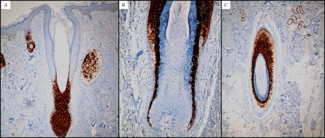 Representative images of the suprabasal cells of the ORS. (A) The normal hair follicle and sebaceous gland cells stain positively for CK17, while the epidermal cells do not (magnification, ×100). The majority of ORS basal cells (B) stain weakly for CK17 (magnification, ×200) or (C) do not stain at all (magnification, ×100). Immunohistochemical staining used for all. ORS, outer root sheath.