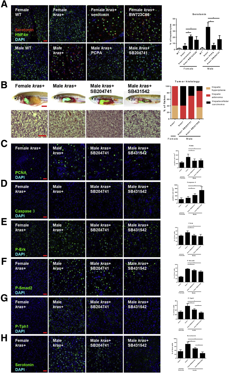 Tgfb1 promotes serotonin synthesis and kras V12 -induced carcinogenesis. Three-month-old adult zebrafish were treated for 7 days with 30 μg/mL dox with or without 2 μmol/L serotonin, BW23C86, PCPA, and SB204741. ( A ) IF staining of serotonin in liver section of these zebrafish. These slides also were co-stained for hepatocytes (HNF4a) and nuclei (4′,6-diamidino-2-phenylindole [DAPI]). Right : Quantification of serotonin-positive liver cells as percentages of hepatocytes (n = 10). Three-month-old Male kras V12 -expressing zebrafish were treated with dox with or without SB204741 and SB431542, respectively. ( B ) Gross morphology and H E staining of liver sections of these zebrafish. Quantification of tumor histology observed in the H E-stained liver sections of these zebrafish (n > 8 in each group). ( C–H ) IF staining and quantification of ( C ) PCNA+, ( D ) caspase 3+, ( E ) P-Erk+, ( F ) P-Smad2, ( G ) P-Tph+, and ( H ) serotonin+ cells in liver sections (n > 8 in each group). * P