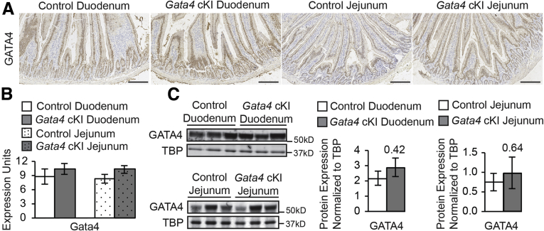 Duodenal and jejunal epithelial cells in Gata4 cKI mice express normal levels of GATA4. ( A ) Immunohistochemistry showed nuclear GATA4 protein (brown staining) in duodenal and jejunal epithelium of Gata4 cKI mice at similar staining intensity compared with controls. Sections from at least 3 control and 3 Gata4 cKI animals were evaluated. Hematoxylin was used to counterstain tissue. Scale bars : 100 μm. ( B ) qRT-PCR showed that Gata4 mRNA was unchanged in epithelial cells of the duodenum and jejunum of ROSA26 lnlG4/+ Villin-Cre (designated Gata4 cKI) mice compared with control mice ( ROSA26 lnlG4/+ ) (n = 3 per genotype; experiments performed in triplicate). Glyceraldehyde-3-phosphate dehydrogenase was used for normalization. Error bars show SEM. P values were determined by 2-sample Student t test. ( C ) Immunoblot analysis of nuclear extracts from duodenal and jejunal epithelial cells of control and Gata4 cKI mice was used to quantify GATA4 protein (n = 3 per genotype). To quantify protein expression, signal was measured using quantitative infrared immunoblotting (LI-COR) and National Institutes of Health ImageJ software. GATA4 protein levels were normalized to TATA binding protein (TBP) levels. GATA4 expression was unchanged in duodenum and jejunum of Gata4 cKI animals compared with control. Molecular weight marker locations are indicated. Error bars show SEM. P values were determined by 2-sample Student t test.