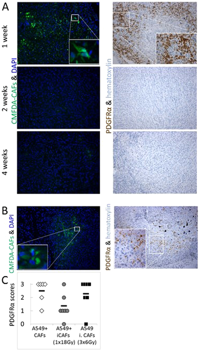 Fate of human CAFs co-transplanted in A549 xenografts. ( A ) Time-course experiment showing presence/absence of implanted human CAFs in tumors harvested at 1, 2 and 4 weeks post-implantation. ( B ) Detection of irradiated CAFs (1 × 18 Gy) in tumors 1 week post-implantation; Exogenously administered CAFs are visualized by green CMFDA fluorescence (left panels) and by immune-staining against human-specific anti-PDGFRα antibody (right panels). ( C ) Blinded quantitative scorings of PDGFRα-positive fibroblasts in early tumor tissues with admixed CAFs.